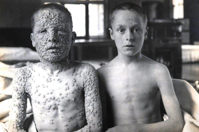 Kids with smallpox